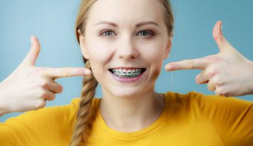 Essential things you need to know about adult braces