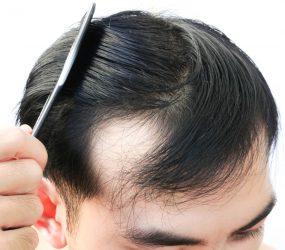 Understanding The Best Procedure Used in Hair Transplantation